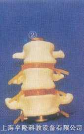gd-0153b正常腰椎组合(三节)