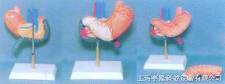 大型胃、胰和十二指肠健康模型