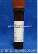 纤维素酶 Cellulase from Aspergillus niger【正品现货】 上海索宝