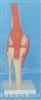 膝关节功能模型
