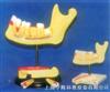 小型牙列模型