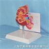 肾脏解剖模型